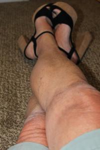 Gretchen-legs.JPG
